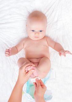 Eritemul fesier la bebelusi − cum il tratam?