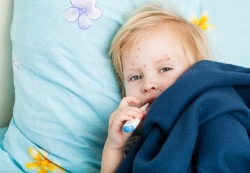 Varicela sau varsatul de vant la copii: ghid medical