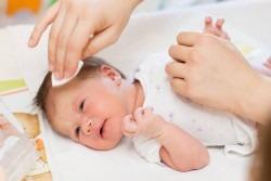 Dermatita seboreica infantila sau crusta de lapte: cauze, simptome si tratament