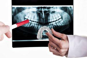 Bruxismul sau scrâşnitul din dinţi