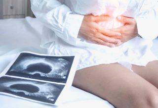 Ce trebuie să știi despre chisturile ovariene